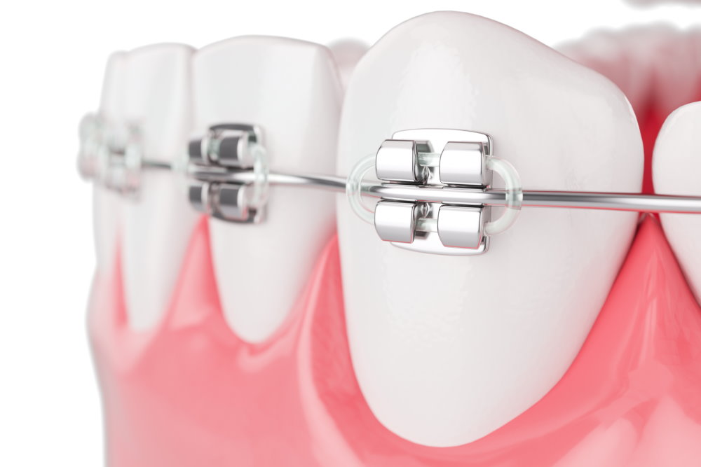 Dental Braces - Dr Sadiq Sharaf Dental Center