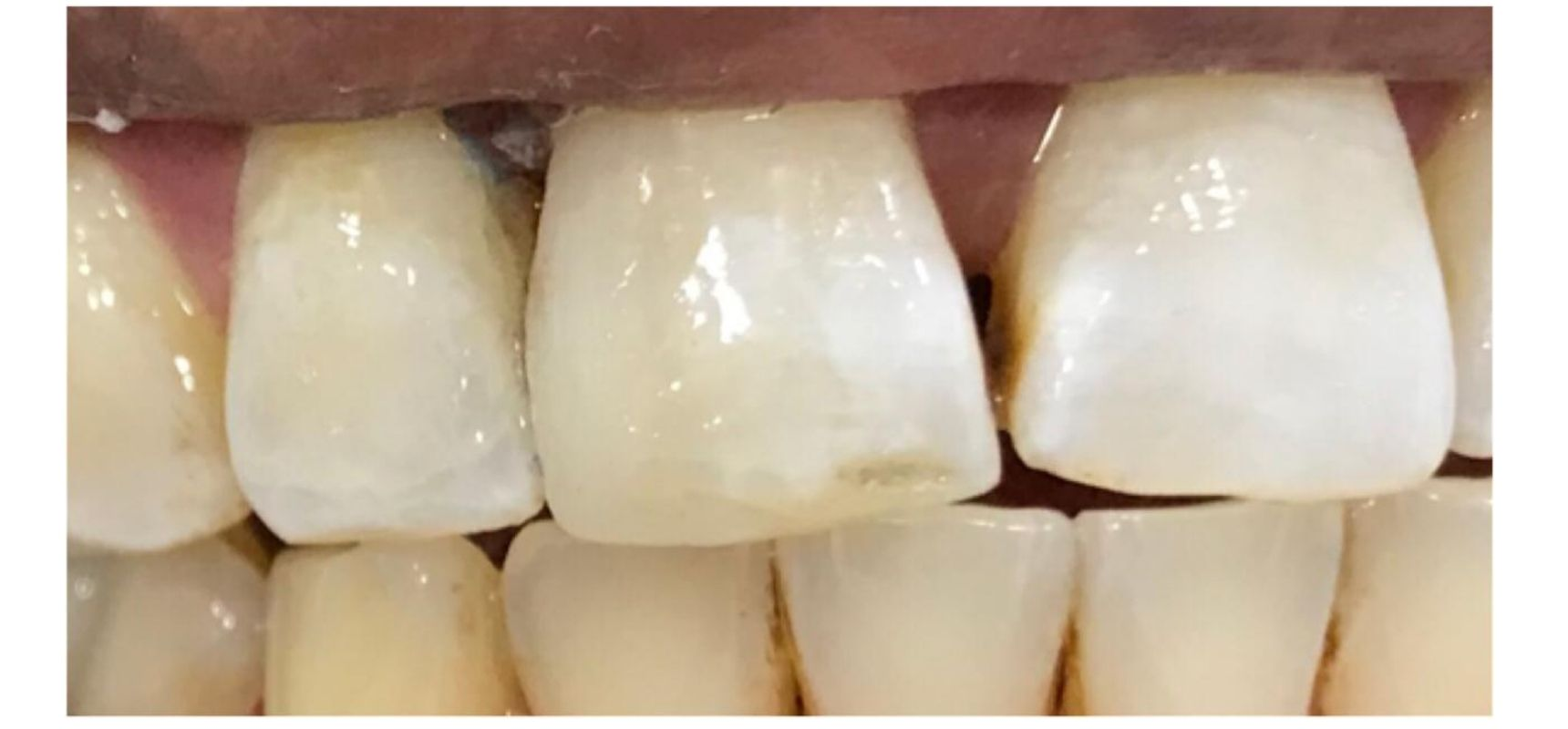 Before-Anterior basket replacement and tooth length adjustment