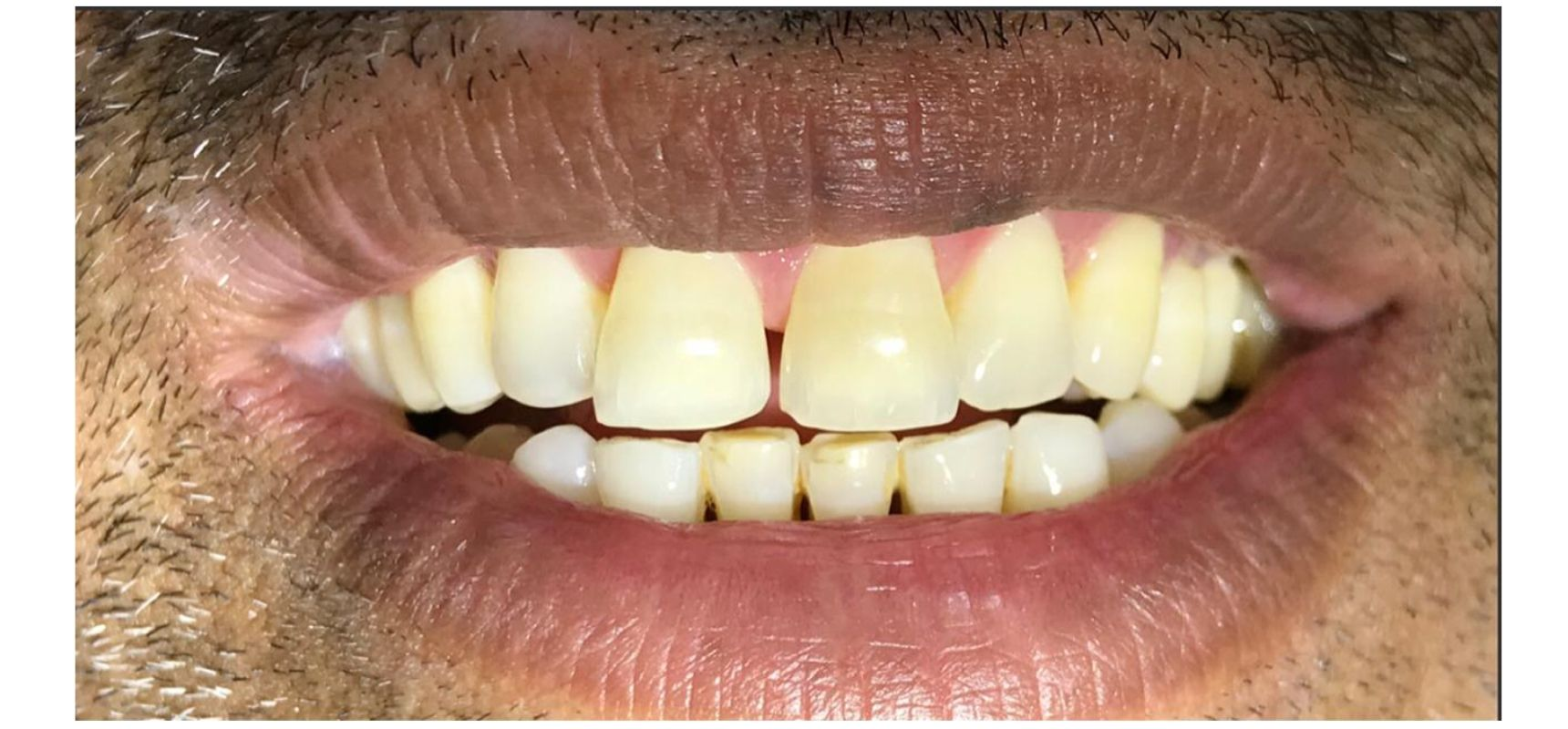 Before-Composite filling to close midline diastema and teeth length adjustment