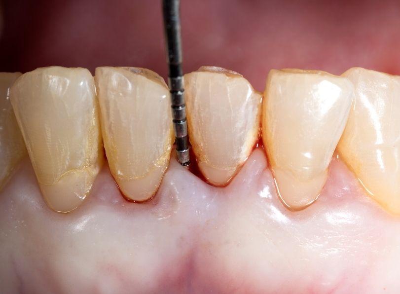 Gum & Periodontal Dentistry - Dr Sadiq Sharaf Dental Center