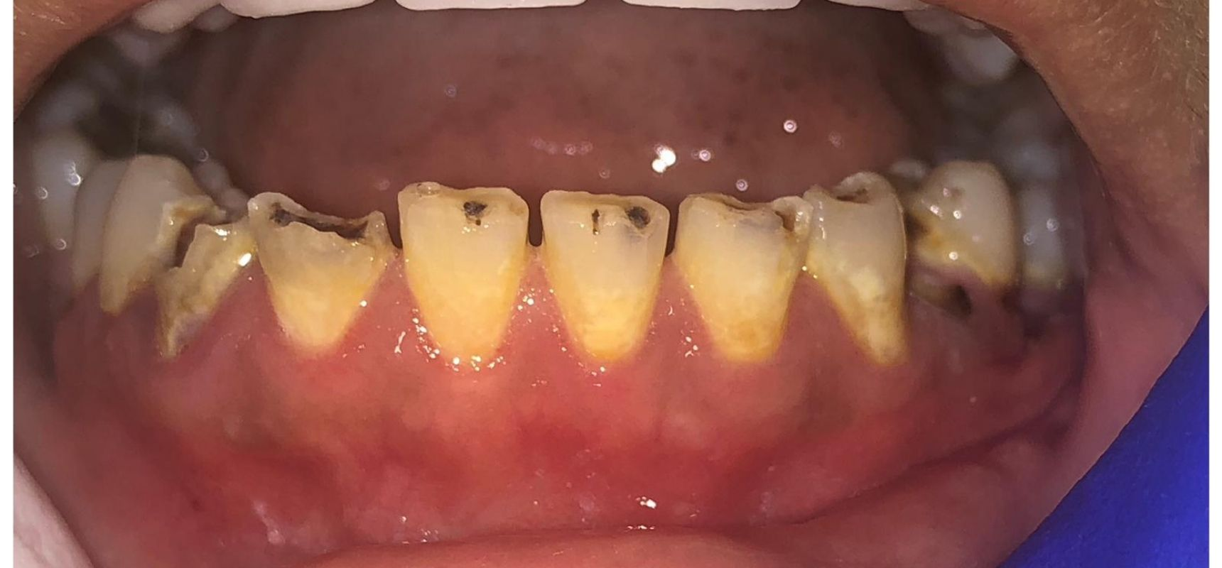 Before-Filling & Root Canal Treatment