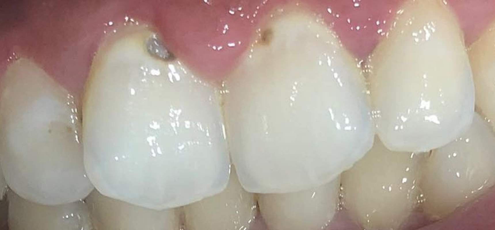 Before-Composite filling after removal of decay.