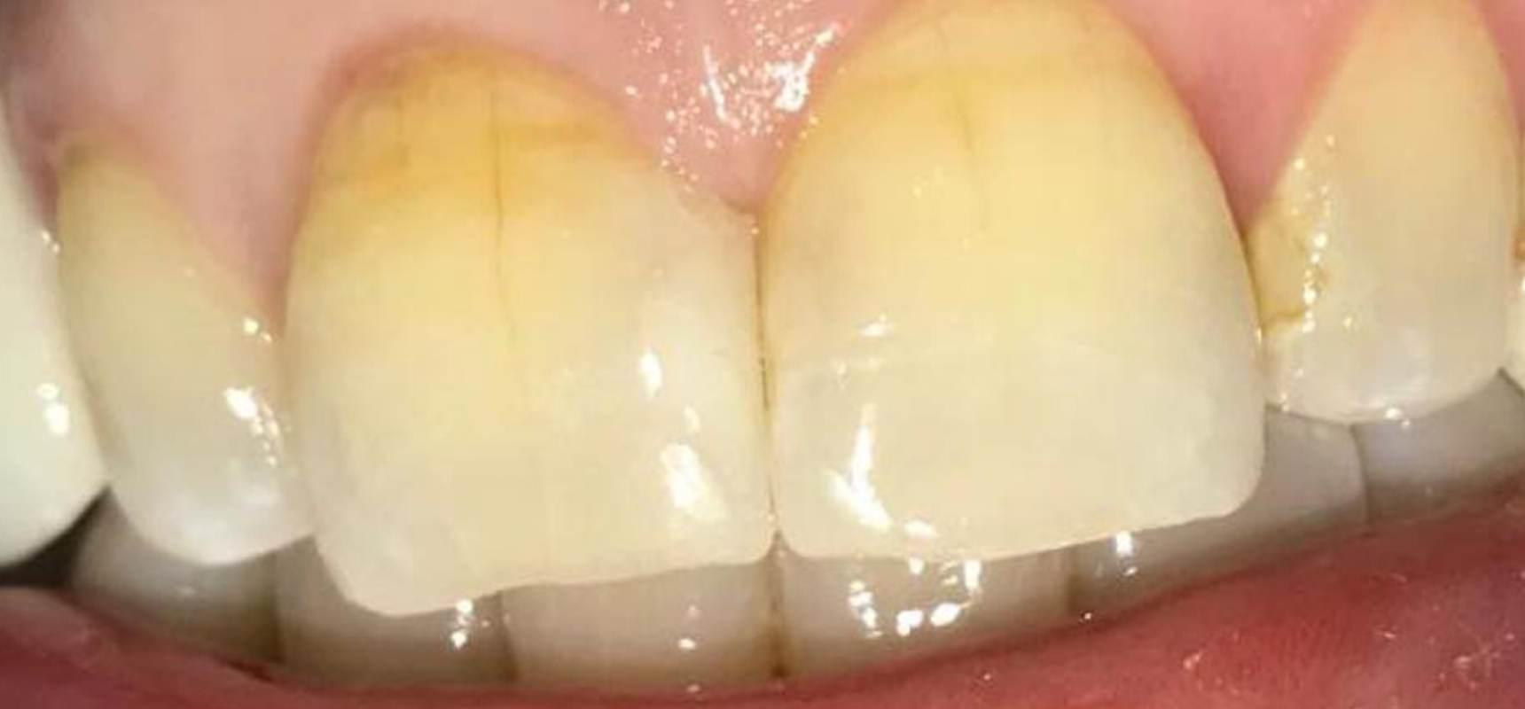 After-Composite filling to close midline diastema