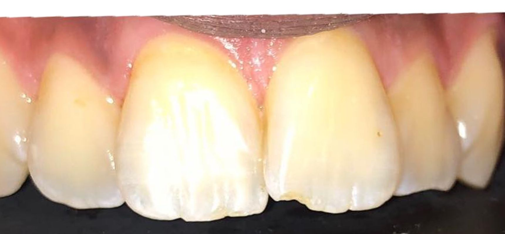After-Polishing of front teeth