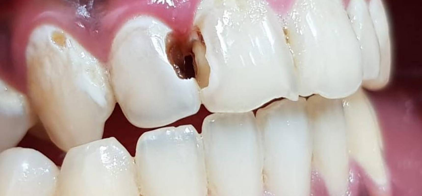 Before-Composite filling after removal of decay