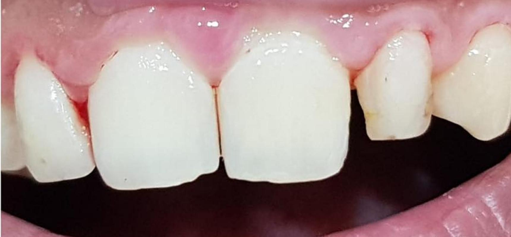 Before-Closing the space between the front teeth by using cosmetic fillings.