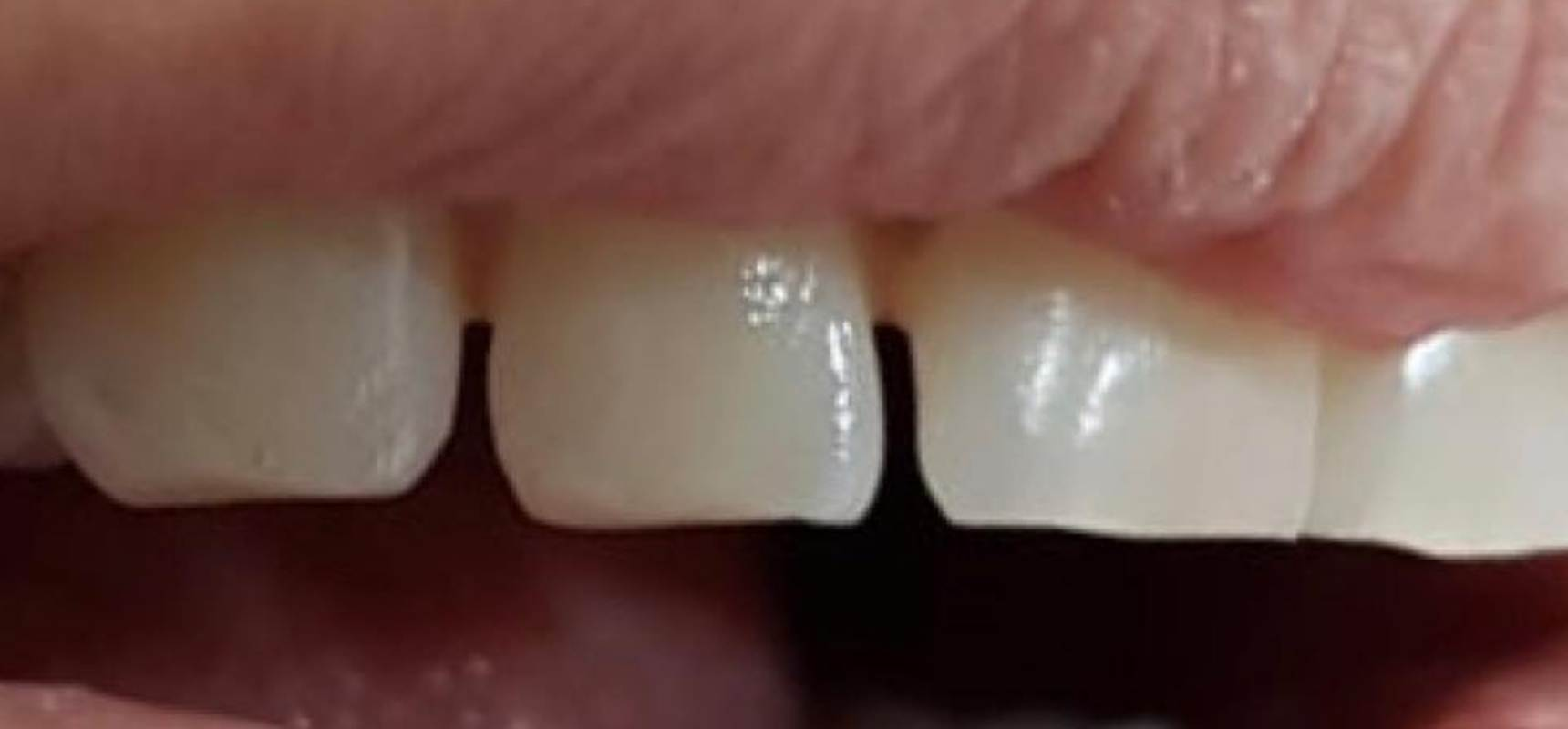 Before-Cosmetic filling of a chipped tooth