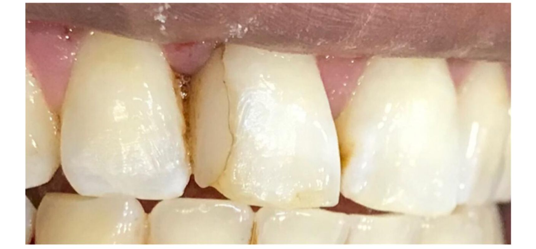 After-Anterior basket replacement and tooth length adjustment