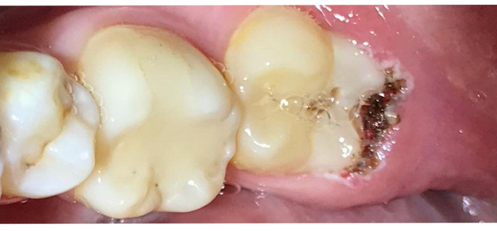 Before- Pulmology