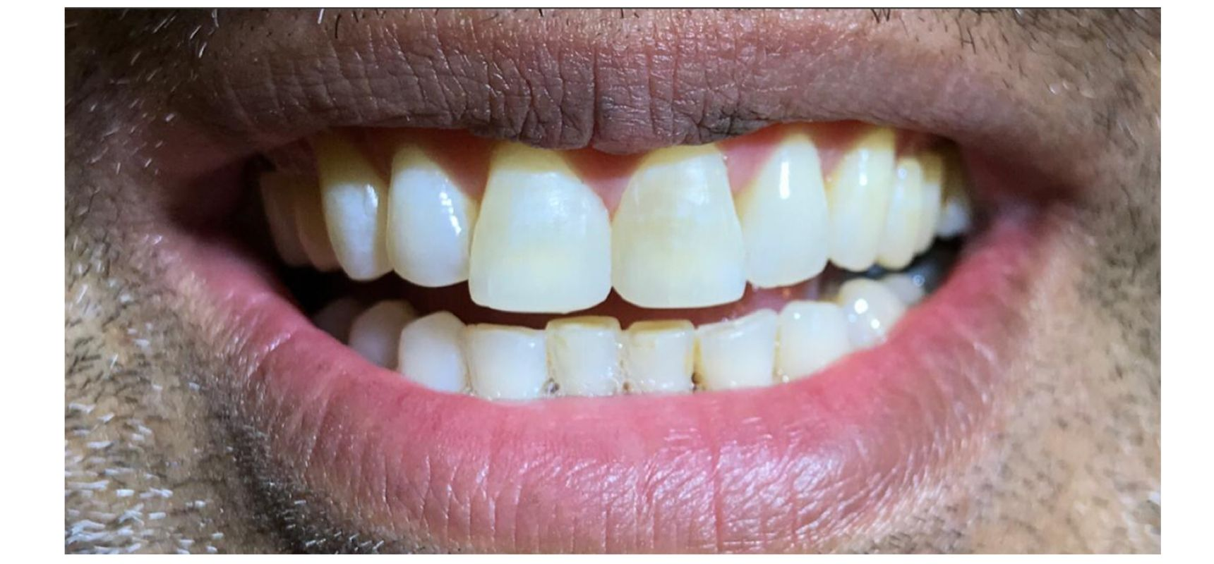 After-Composite filling to close midline diastema and teeth length adjustment