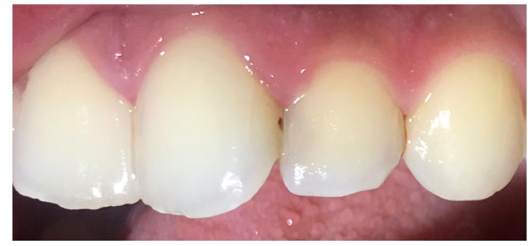 Before-Cosmetic fillings for the front teeth.