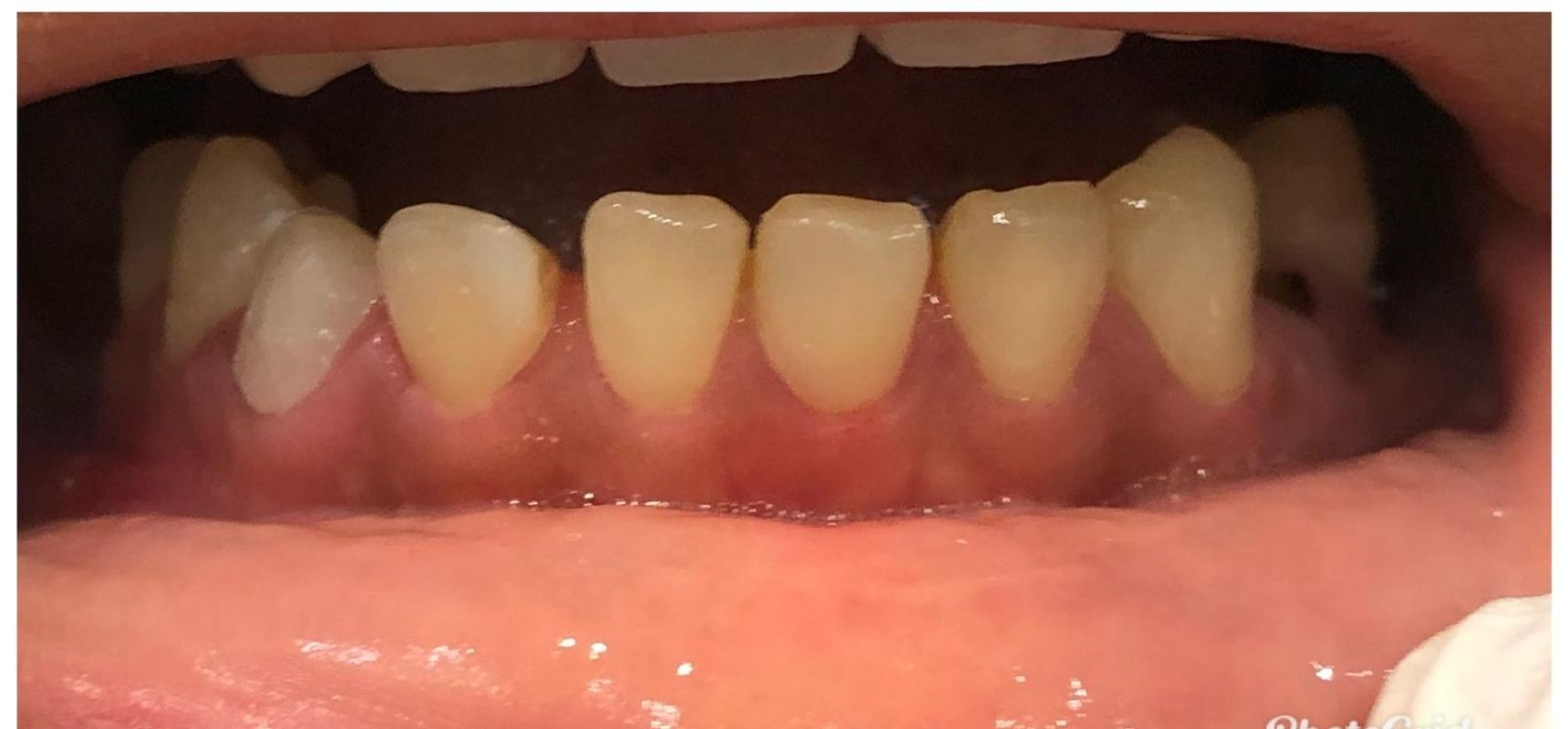 After-Filling & Root Canal Treatment