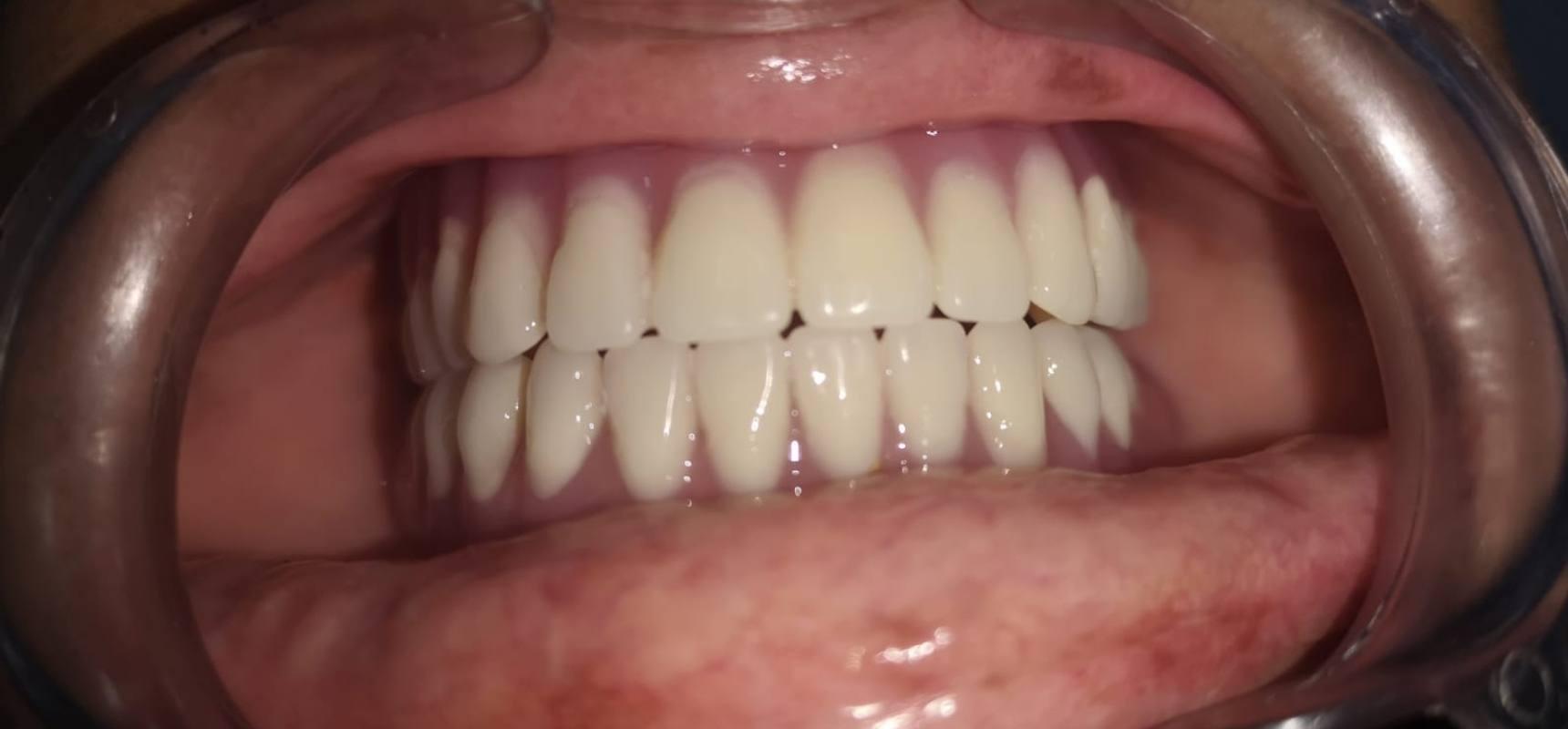 After-Denture Done