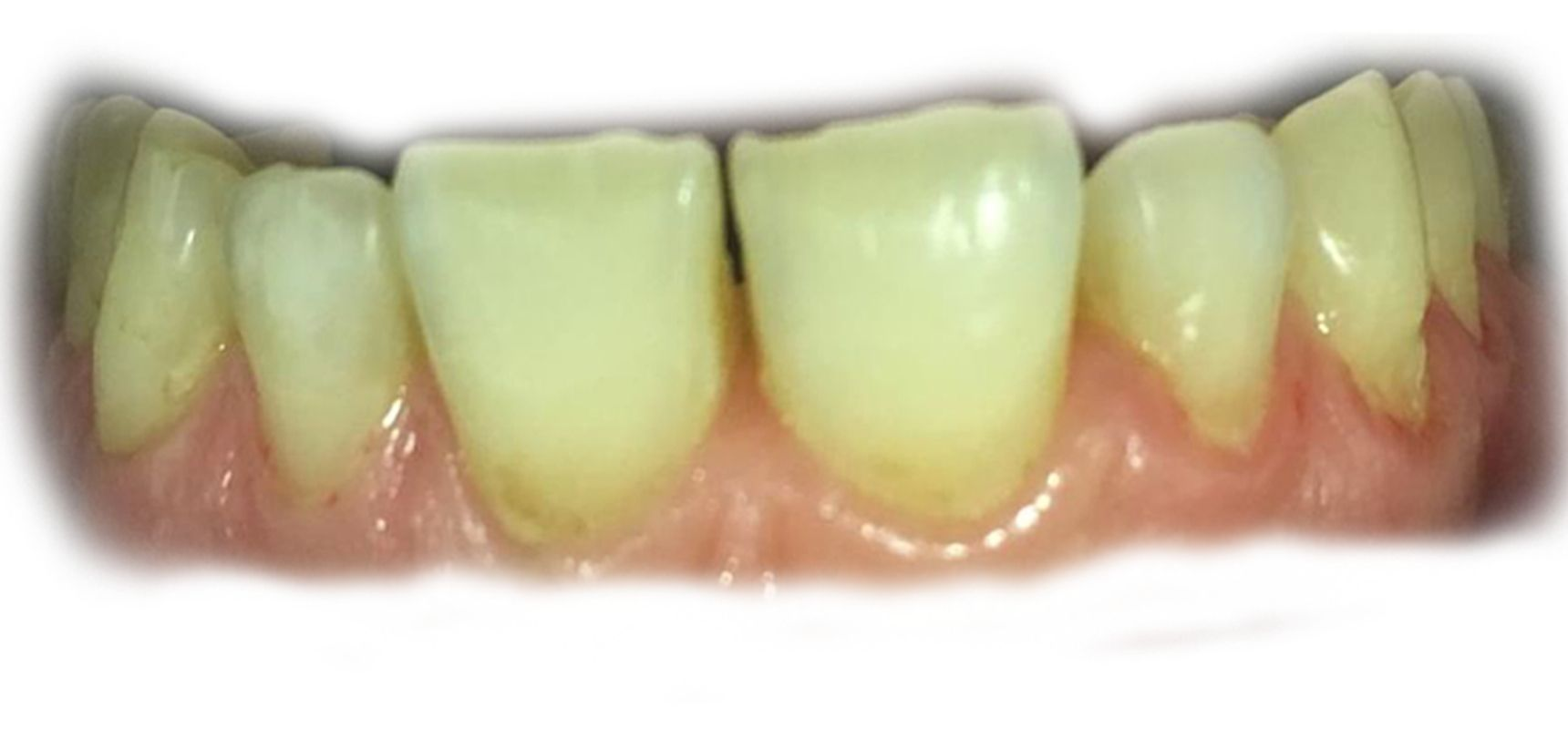 Before-Veneer case