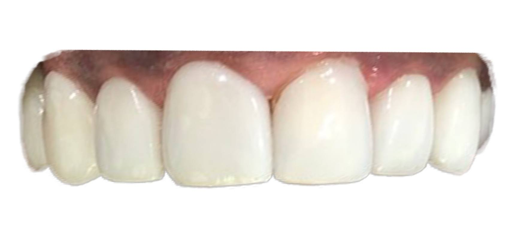 After-Veneer to improve shape and colors of upper front teeth done