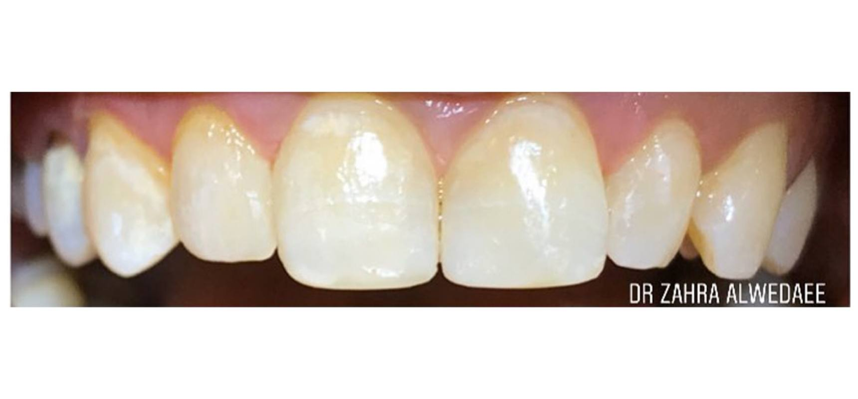 After-Cosmetic fillings