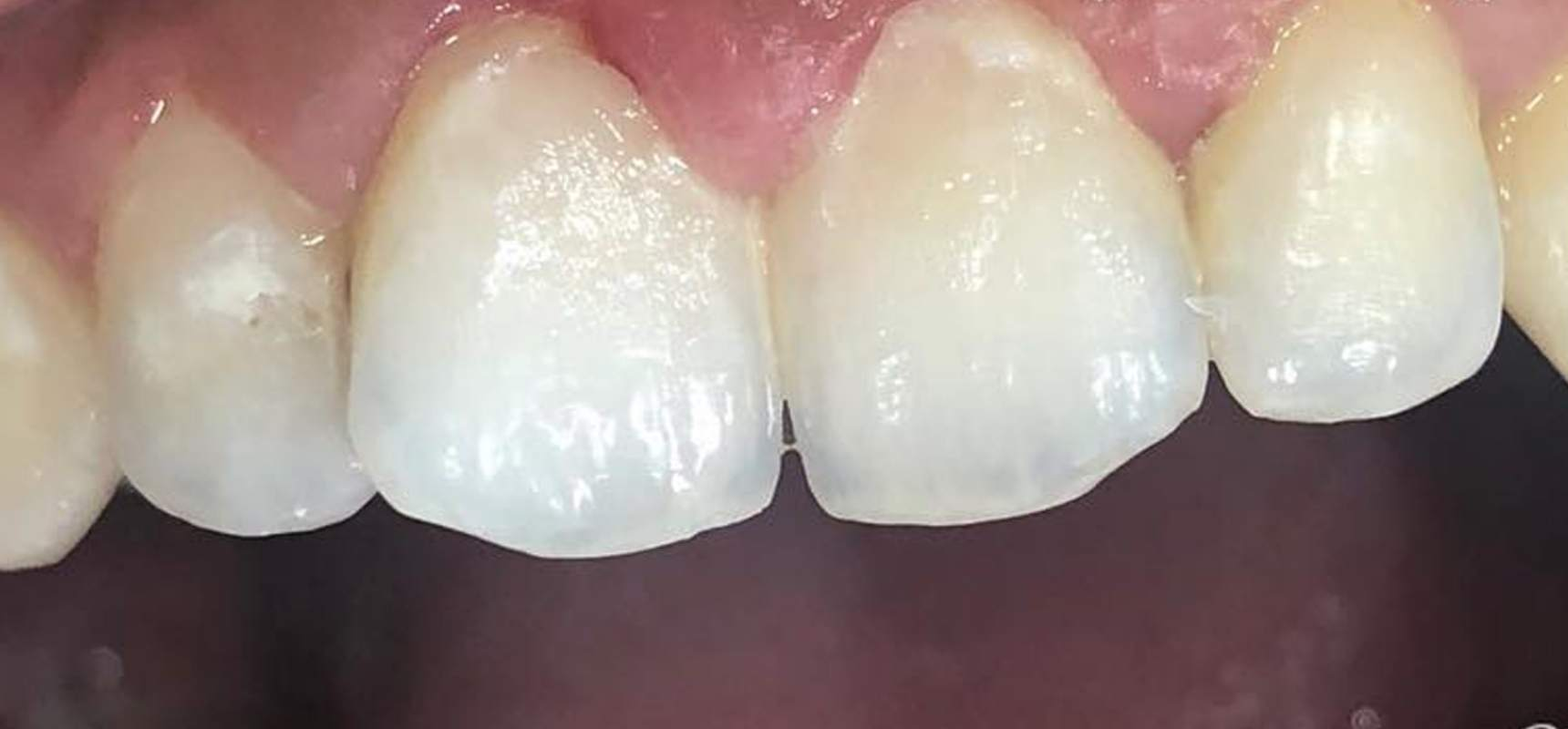 After-Composite filling after removal of decay.