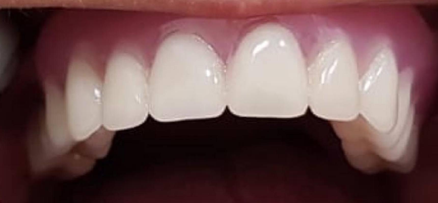 After-Removable denture.