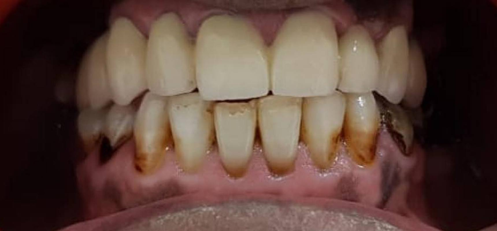 After-Fixed prosthodontic