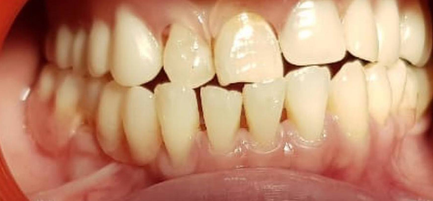 After-A moving kit to replace lost teeth
