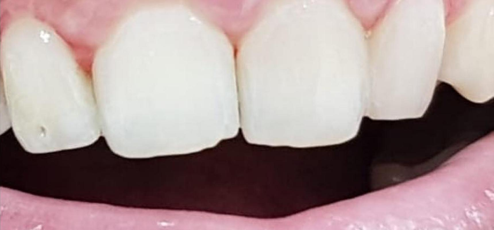 After-Closing the space between the front teeth by using cosmetic fillings.
