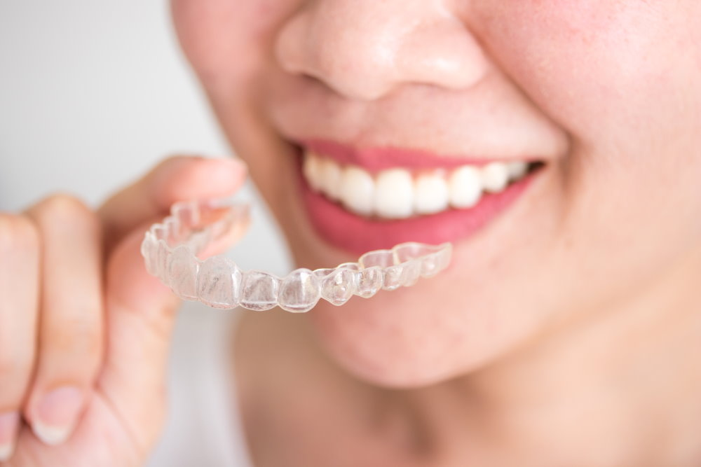 invisalign orthodontic - Dr Sadiq Sharaf Dental Center