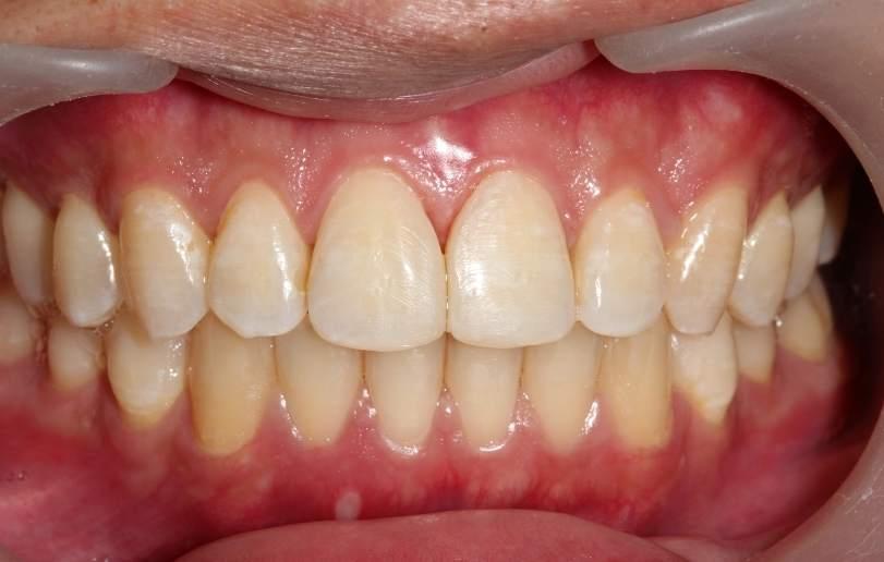 Dental Fillings - Dr Sadiq Sharaf Dental Center