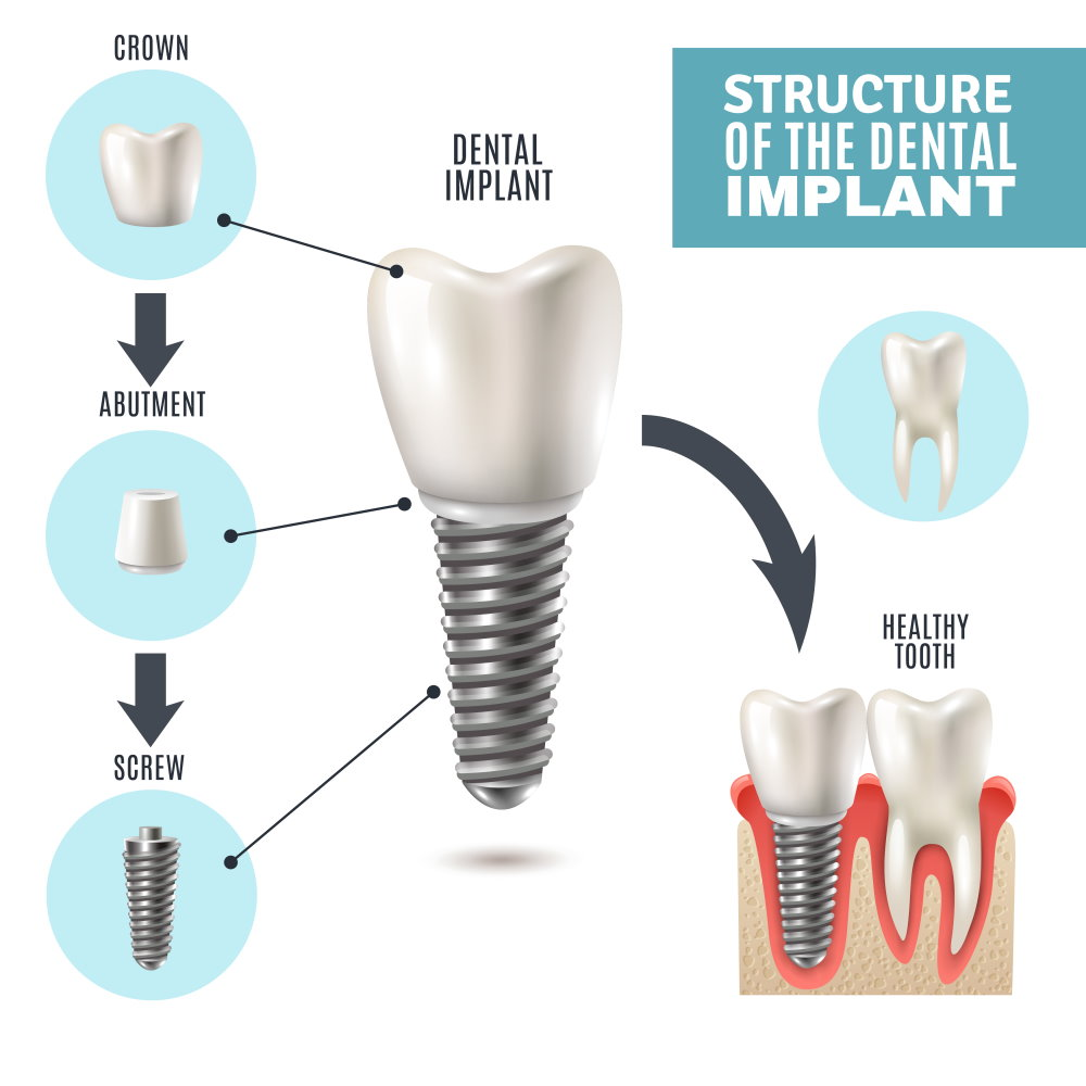 Dental implant - Dr Sadiq Sharaf Dental Center