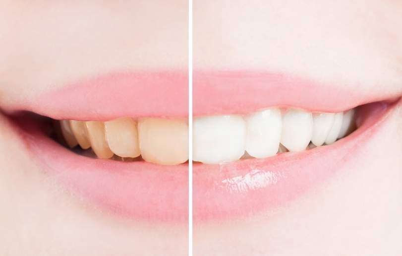 Teeth Whitening - Dr Sadiq Sharaf Dental Center