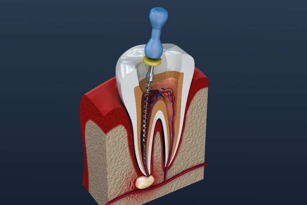 Root Canal Treatment - Dr Sadiq Sharaf Dental Center