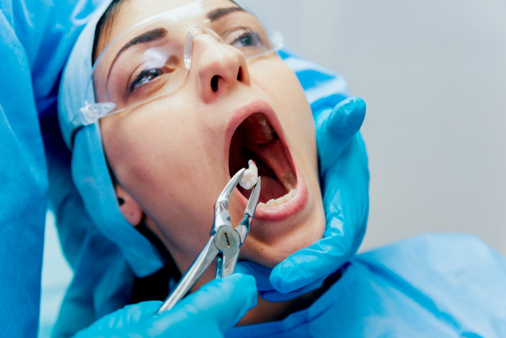 Tooth Extraction  - Dr Sadiq Sharaf Dental Center